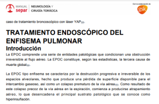 Manual de Neumología y cirugía torácica