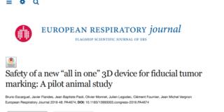 Dispositivo 3D «todo en uno» para tumores